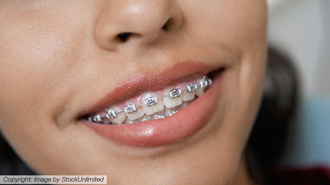Kieferorthopäden - Zahnregulierung - Zahnspange
